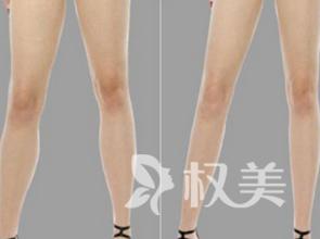 三亞紅妝醫療整形醫院小腿吸脂好不好 吸走脂肪更加美麗