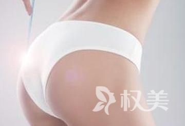 臀部塑型如何做呢 分臀塑型给你完美身材