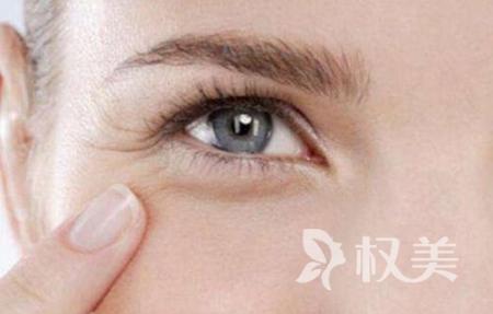 眼部如何去皱 吉林大学第一医院整形科激光除皱恢复眼部神采