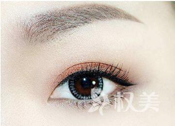 金华协和医院整形科做欧式双眼皮的手术有哪些优点  什么人可以做呢