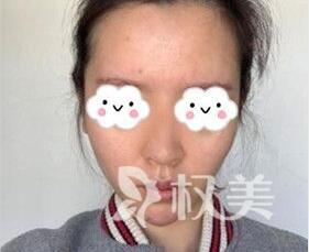 鼻综合整形 讲述我在上海长征医院整形外科 完成美丽蜕变的美鼻经历