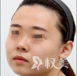面部吸脂案例对比图  肉脸到美人的蜕变