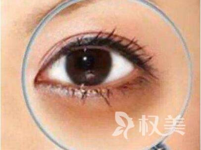 黑眼圈怎么去除 广州军美整形医院激光去黑眼圈好吗