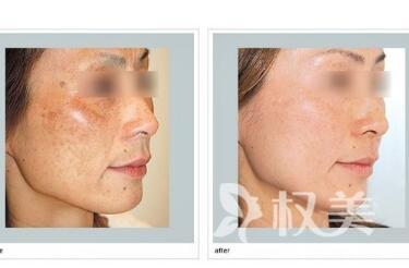 深圳寶安人民醫院整形科做激光除皺的優勢有哪些  安全性怎么樣