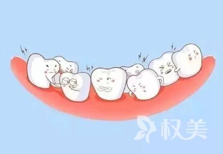 牙齒擁擠怎么矯正 杭州口腔醫院哪家好
