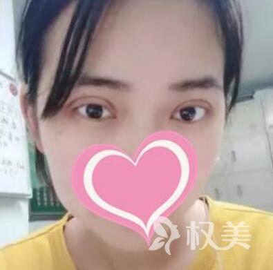 我在上海长征医院整形科做了8mm全切双眼皮,从此不再睡眼朦胧