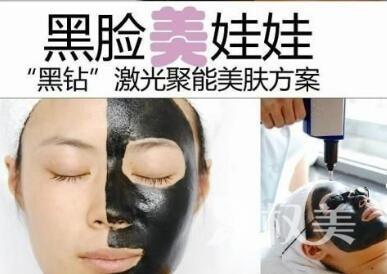 中山人民医院整形科做一次黑脸娃娃需要多少钱呢  可以保持多长时间