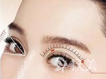 杭州双眼皮整形医院哪家好 切开双眼皮价格是多少