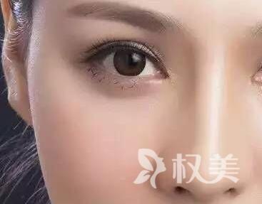 北京大型整形医院排名 埋线双眼皮能维持多久