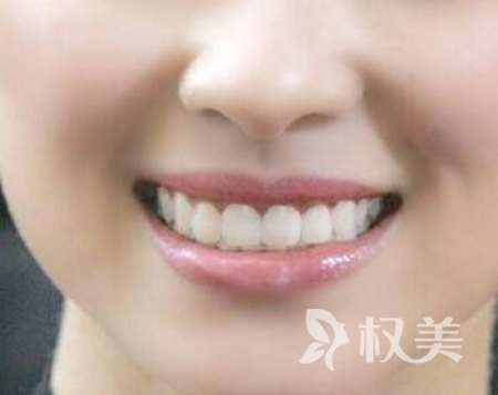 做一顆烤瓷牙多少錢 沈陽做烤瓷牙好的口腔醫院