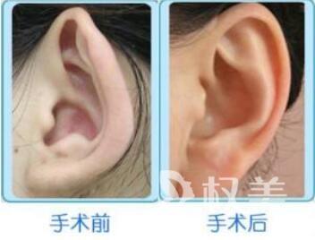 杭州同欣整形医院做招风耳整形的优点有哪些  价格贵不贵呢