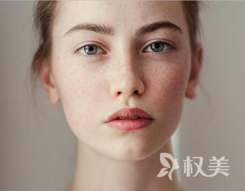 昆明丽都医疗美容医院 彩光祛斑多久能见效 一般情况2-4个月见效