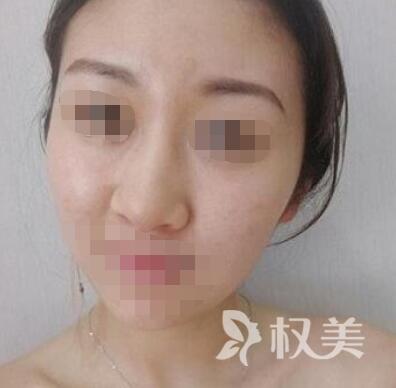 哈尔滨九院整形科鼻综合 鼻子小了一点点美丽多了好几分