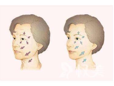 深圳中海医院整形科做激光嫩肤的优势有哪些  术后该怎么护理