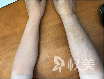 深圳南山人民医院整形科做手臂脱毛需价格贵不贵  效果怎么样