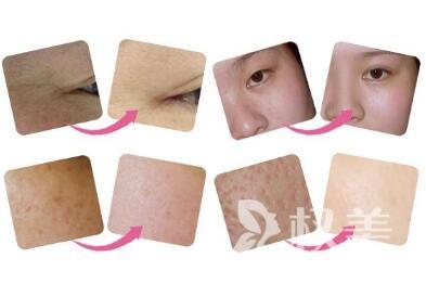 温州解放军118医院整形科做光子嫩肤祛斑的优点  术后注意事项有哪些