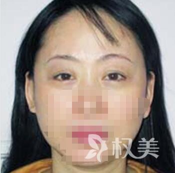 宁波江北建国医疗美容医院 为我做眼部年轻化手术  从大妈到少女完美蜕变