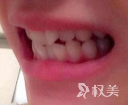 """牙齿整形哪家医院好 成都武侯圣贝口腔整形医院 让我的牙齿改""""斜""""归正"""