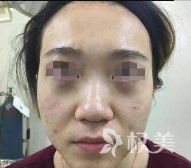 深圳常安整形医院内切去眼袋案例  眼袋没有了  变得元气满满