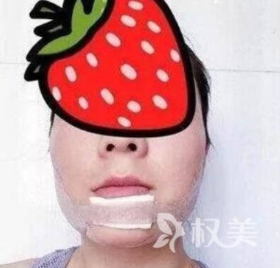 荆州第二人民医院整形科假体隆下巴 小小改变让我美美哒