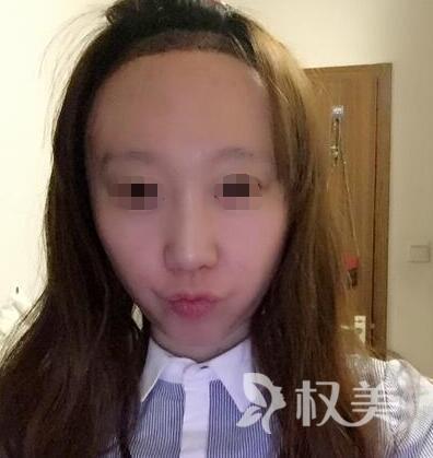 广州倍生女性发际线调整案例