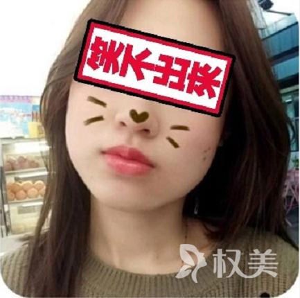 在北京丽都医疗整形美容医院做下颌角整形经历 我的脸终于不再英气逼人