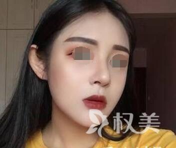 杭州芭黎整形医院鼻综合案例  我也是个精致的小仙女了