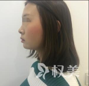 宁波雅韩整形医院假体隆下巴案例  让我拥有立体俏轮廓