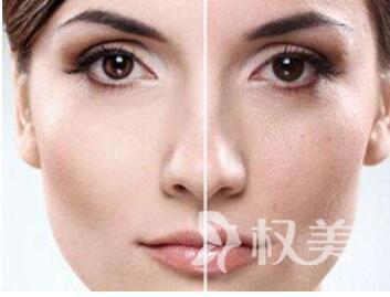 深圳南方激光整形医院彩光嫩肤祛斑效果怎么样  术后注意事项有哪些