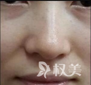 宁波海曙美莱整形医院激光祛斑案例  拥有白皙皮肤不再是梦