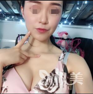 深圳太美整形医院假体丰胸案例  不再是缺乏女人味  拥有完美身材