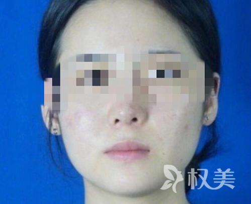 贵阳美贝尔医疗美容医院做了下颌角整形 素颜也超级自信