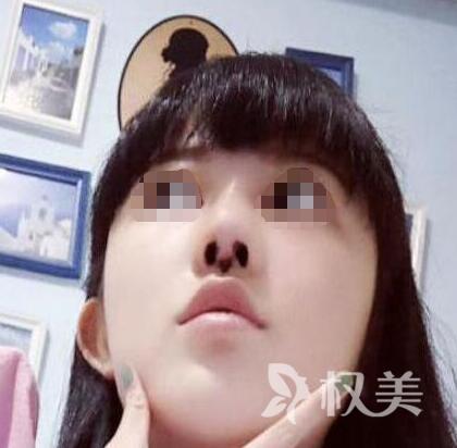 膨体隆鼻整形医院哪家好 我选择安庆第一人民医院整形外科360度美丽无死角