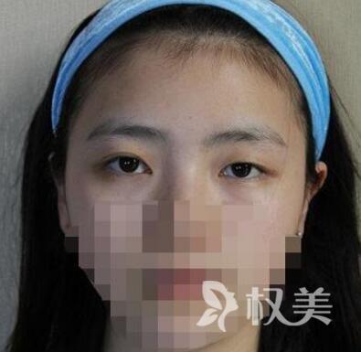 深圳人民医院整形科全切双眼皮 大小眼不见了人更好看了