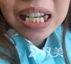 宁波时光美极整形医院牙齿矫正案例  效果堪比整容  变美不止一点点