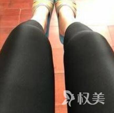 济南军区总医院整形科大腿吸脂帮我摆脱了大象腿 这效果我点32个赞