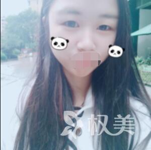 深圳晨曦医疗美容医院开内眼角案例  放大的不只是眼角 还有魅力