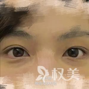 电波拉皮抚平皱纹  我为北京安仁医院整形美容科去除皱纹效果点赞