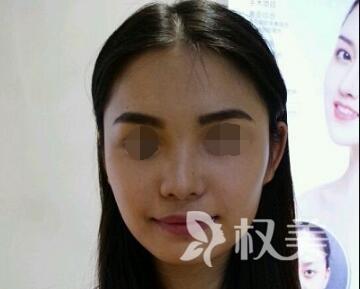 台州长青整形医院下颌角整形案例  一觉醒来变身小脸女神