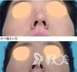 石家庄中心医院整形科歪鼻整形需要多少钱  适应症状有哪些