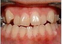 """矫正牙齿要及时 北京拜尔昊城口腔医院整形科帮我的牙齿 改""""斜""""归正"""