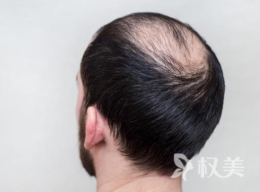 头发种植前整形干货 需注意以下几点远离并发症