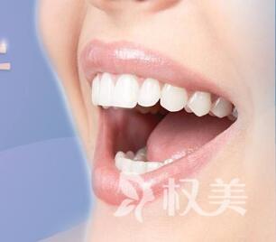 上海拜爾口腔整形科地址 超聲波潔牙好不好
