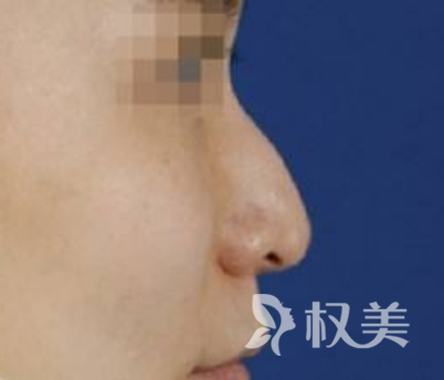 在宜昌伊莱美整形医院做了鹰钩鼻矫正 现在我变得更漂亮了