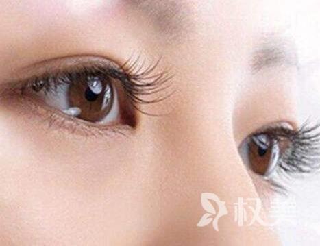 做开内眼角手术需要多少钱 多久能恢复自然