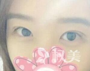 大同美神整形医院韩式双眼皮 我也可以拥有魅力电眼
