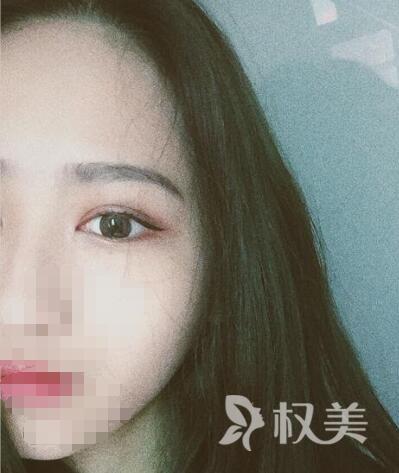 广州荔湾区人民医院整形美容科全切双眼皮 漂亮的眼睛会说话