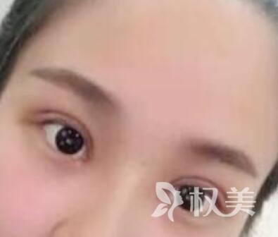 我在烟台华怡整形医院做了切开双眼皮+开眼角 终于摆脱了无神的小眼睛