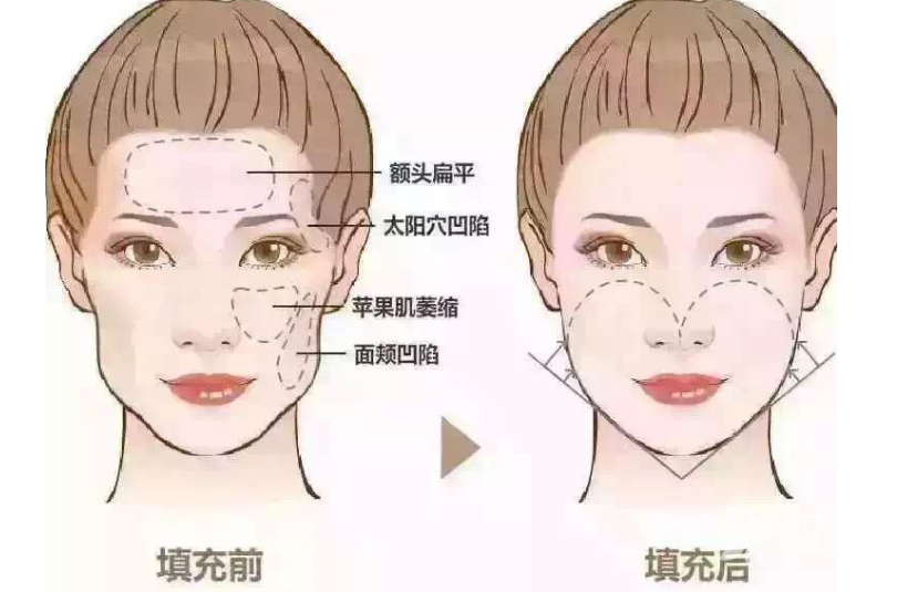 上海自體脂肪填充面部多少錢 伊美爾港華面部填充除皺怎么樣