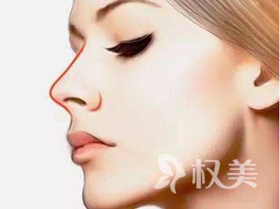 隆鼻都有哪些 上海逆時針自體肋骨隆鼻價格是多少